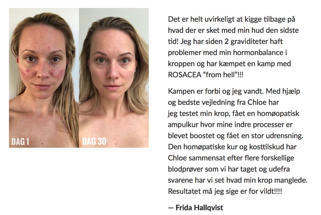 Frida Hallqvist